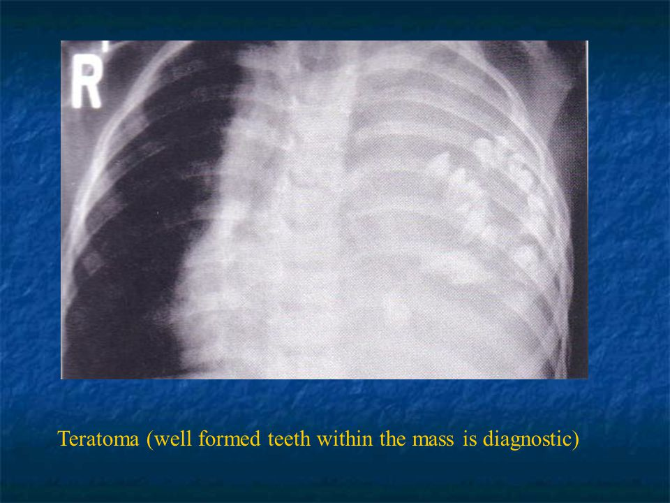 Teratoma (well formed teeth within the mass is diagnostic)