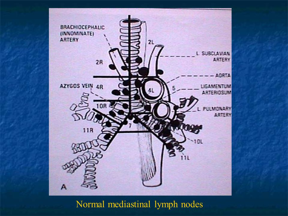 Normal mediastinal lymph nodes