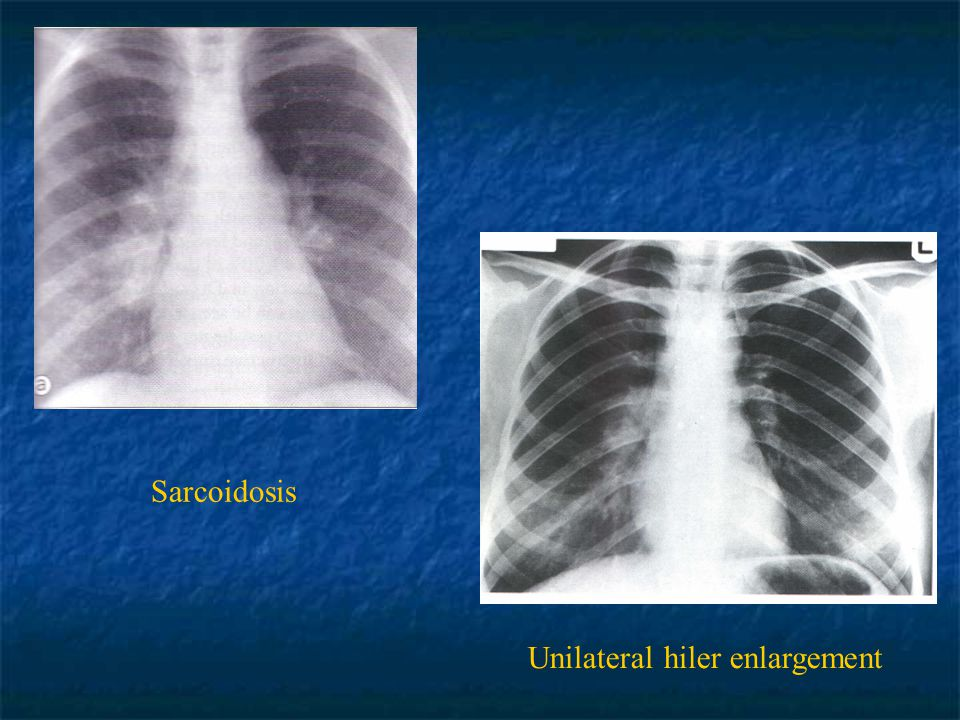 Sarcoidosis Unilateral hiler enlargement