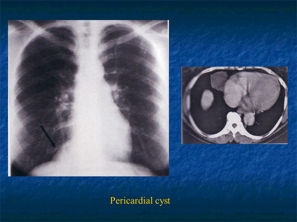 Pericardial cyst