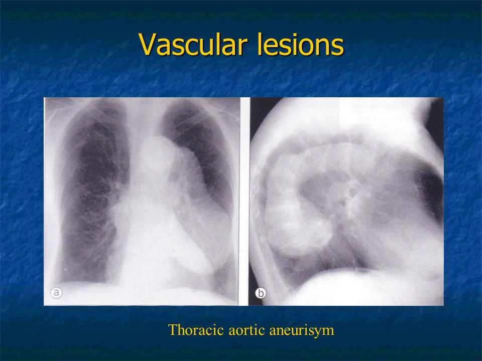 Thoracic aortic aneurisym