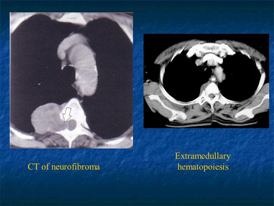 Extramedullary hematopoiesis