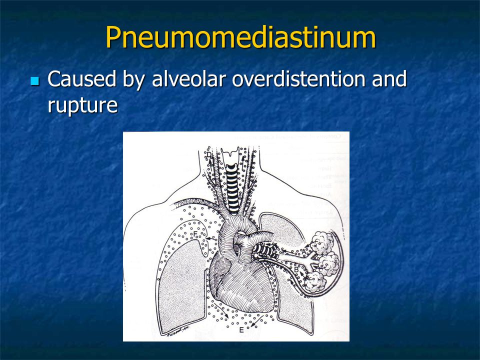 Pneumomediastinum Caused by alveolar overdistention and rupture