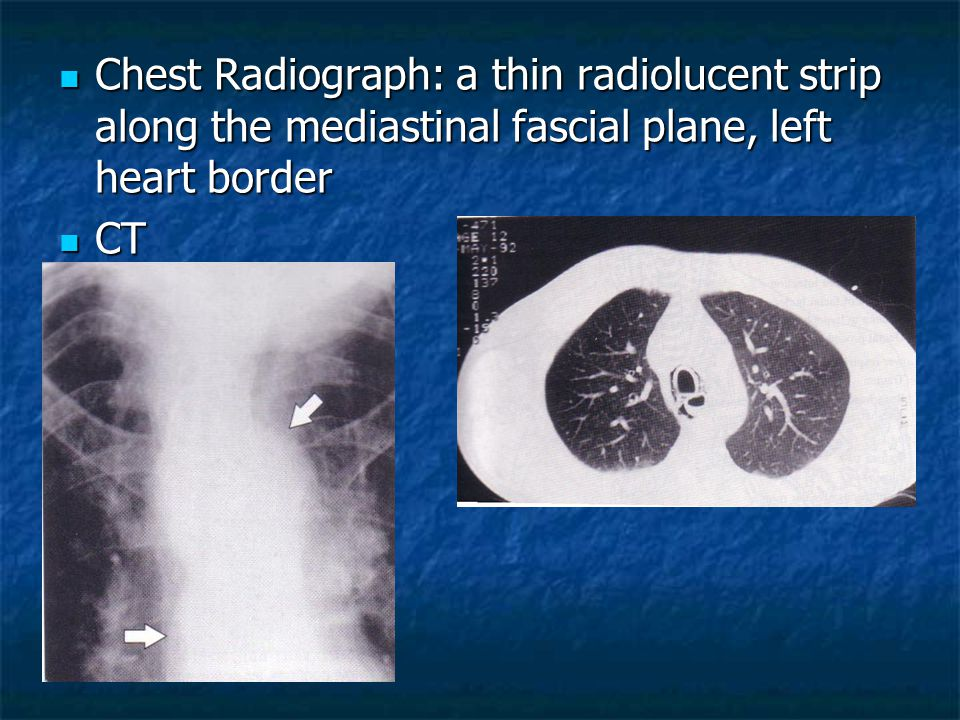 Chest Radiograph: a thin radiolucent strip along the mediastinal fascial plane, left heart border
