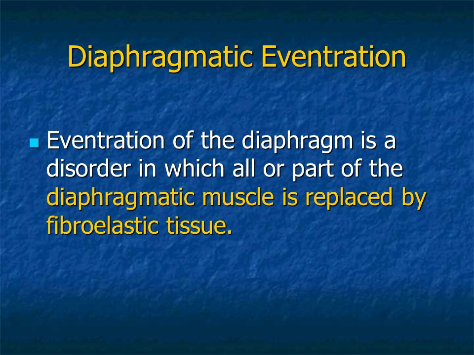 Diaphragmatic Eventration
