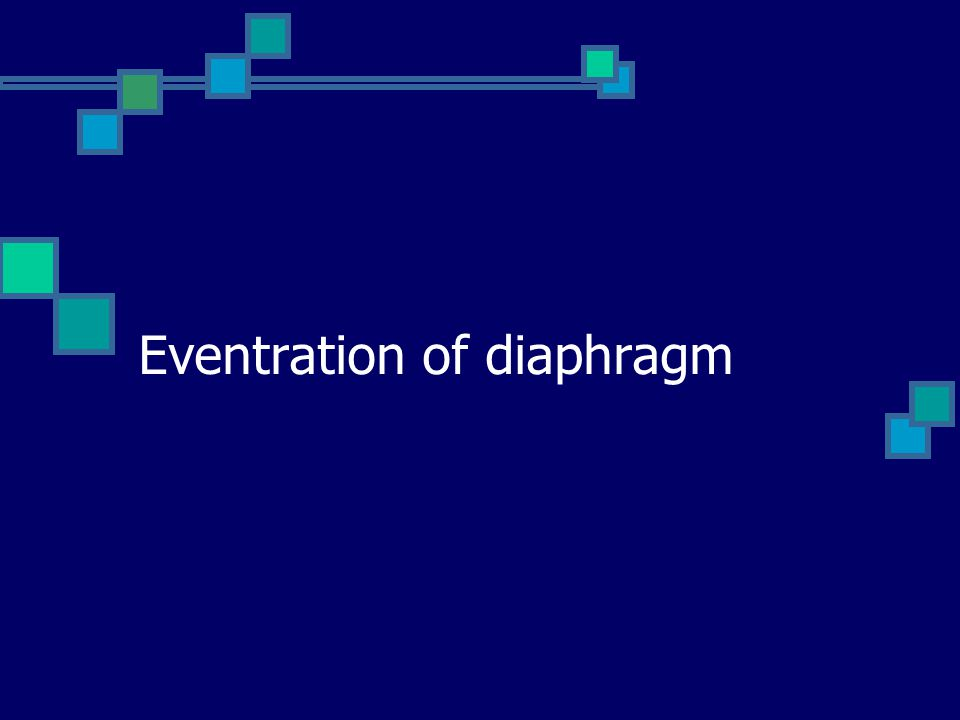 Eventration of diaphragm