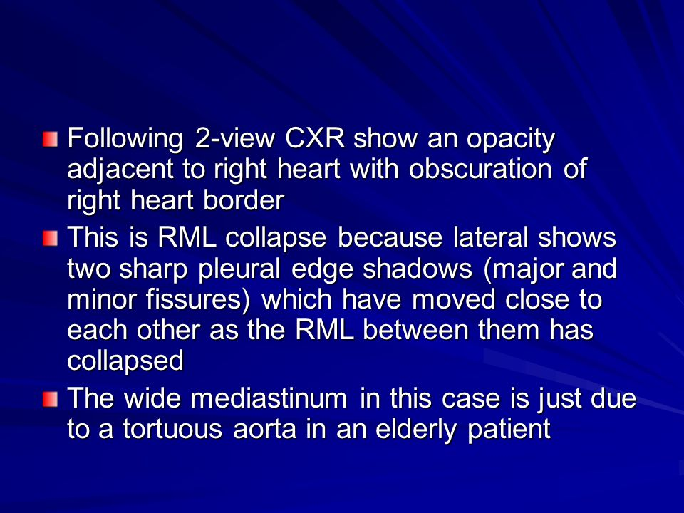 Following 2-view CXR show an opacity adjacent to right heart with obscuration of right heart border