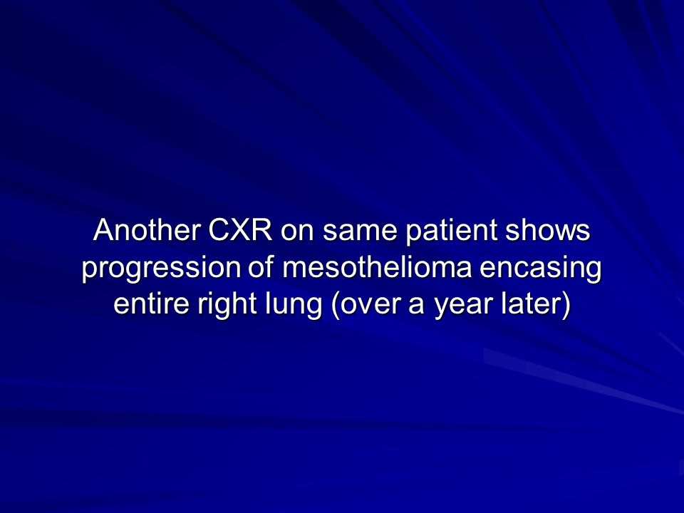 Another CXR on same patient shows progression of mesothelioma encasing entire right lung (over a year later)