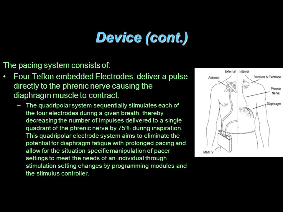 Device (cont.) The pacing system consists of: