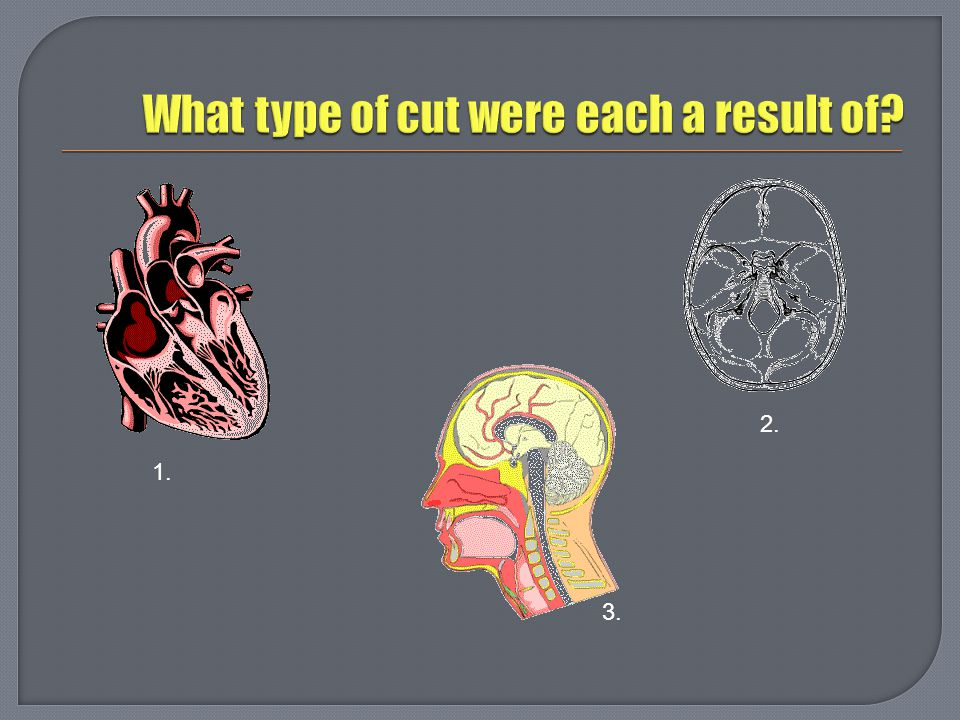 What type of cut were each a result of
