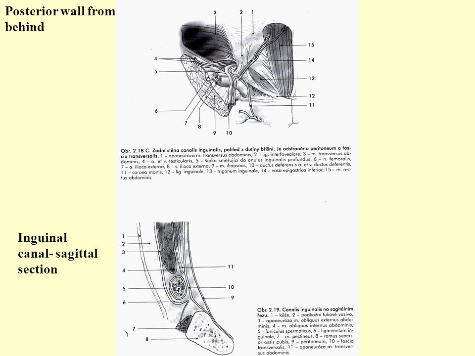 Posterior wall from behind