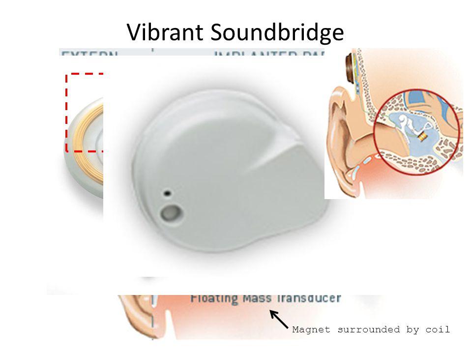 Vibrant Soundbridge Magnet surrounded by coil