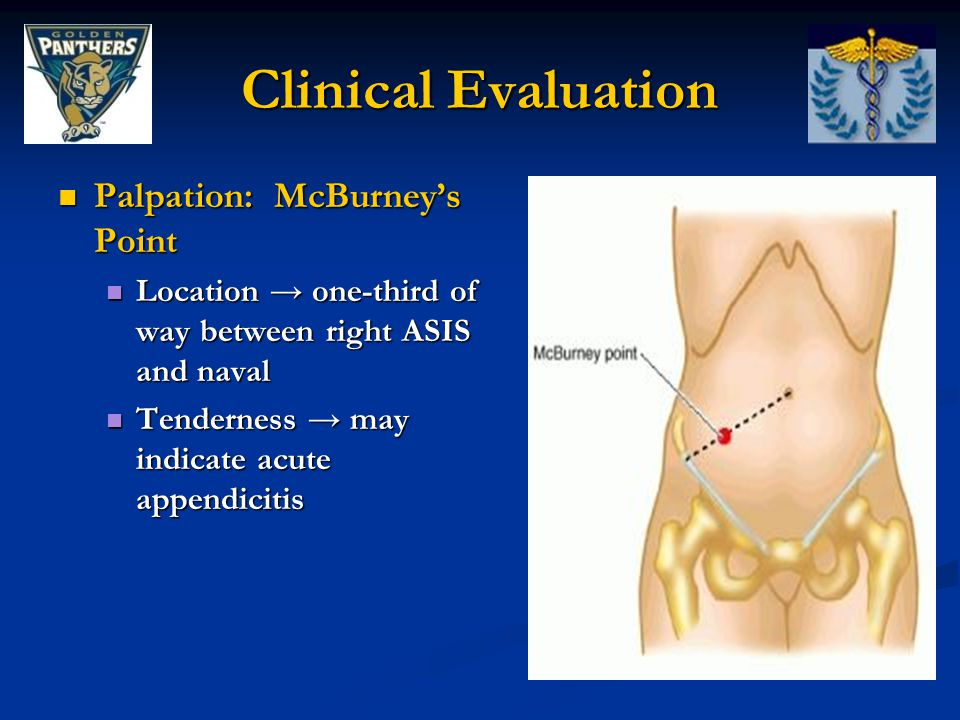 Clinical Evaluation Palpation: McBurney's Point