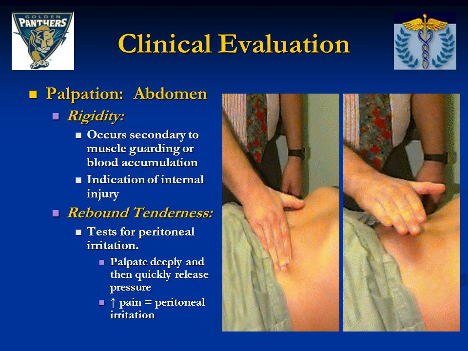 Clinical Evaluation Palpation: Abdomen Rigidity: Rebound Tenderness: