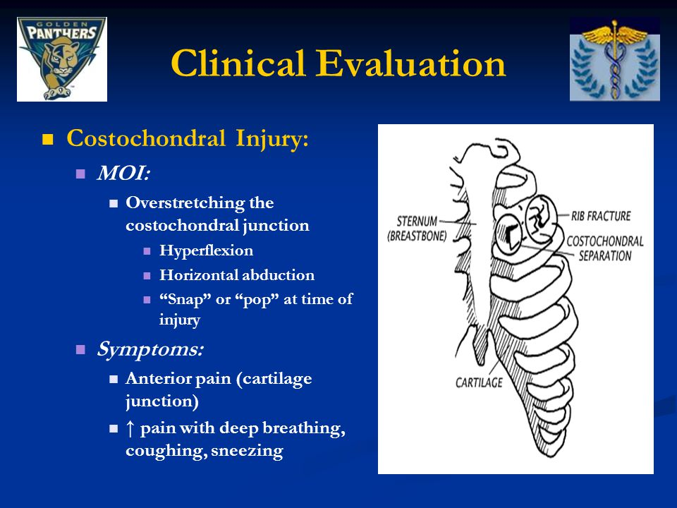 Clinical Evaluation Costochondral Injury: MOI: Symptoms: