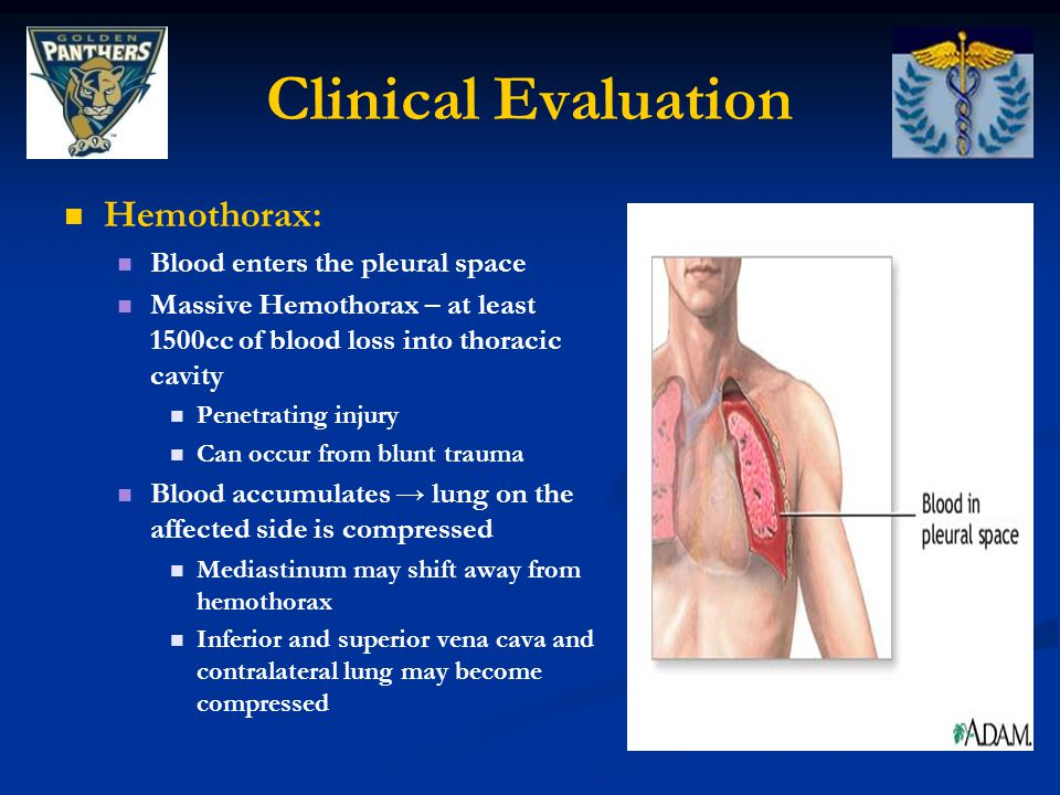 Clinical Evaluation Hemothorax: Blood enters the pleural space