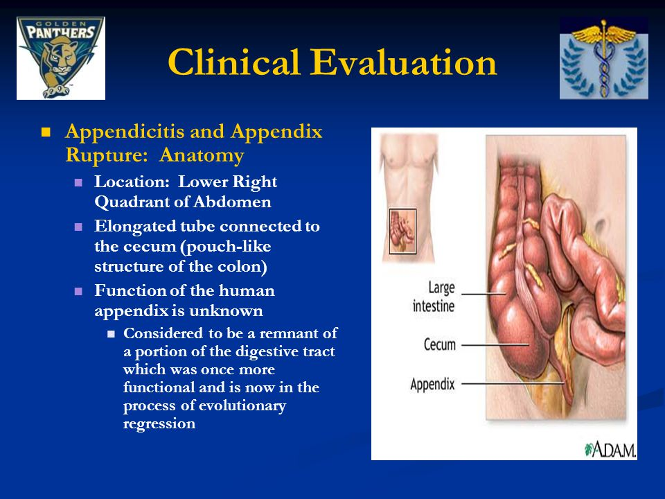 Clinical Evaluation Appendicitis and Appendix Rupture: Anatomy