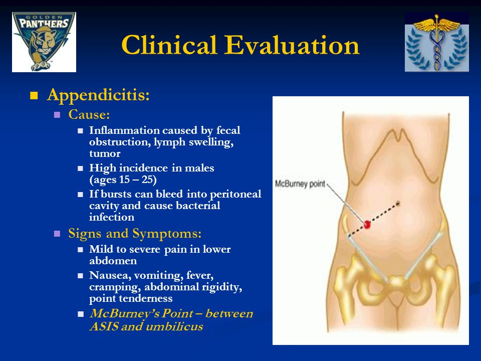 Clinical Evaluation Appendicitis: Cause: Signs and Symptoms: