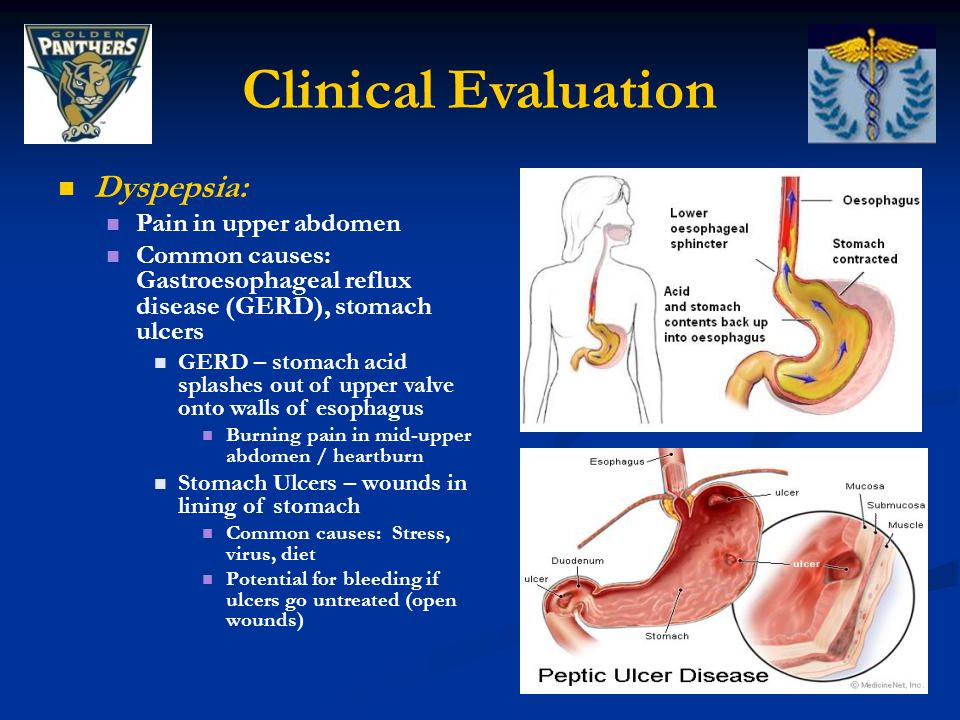 Clinical Evaluation Dyspepsia: Pain in upper abdomen