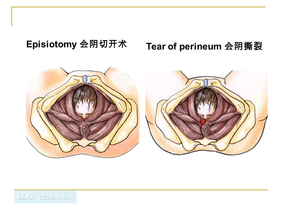 Episiotomy 会阴切开术 Tear of perineum 会阴撕裂