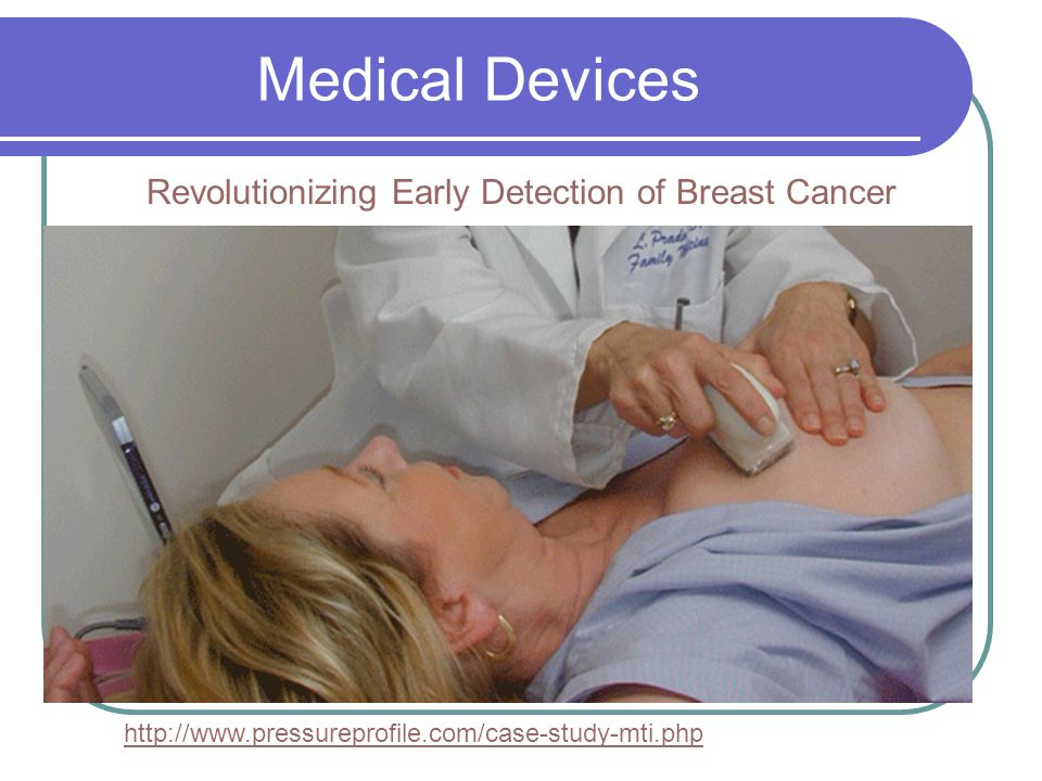 Revolutionizing Early Detection of Breast Cancer