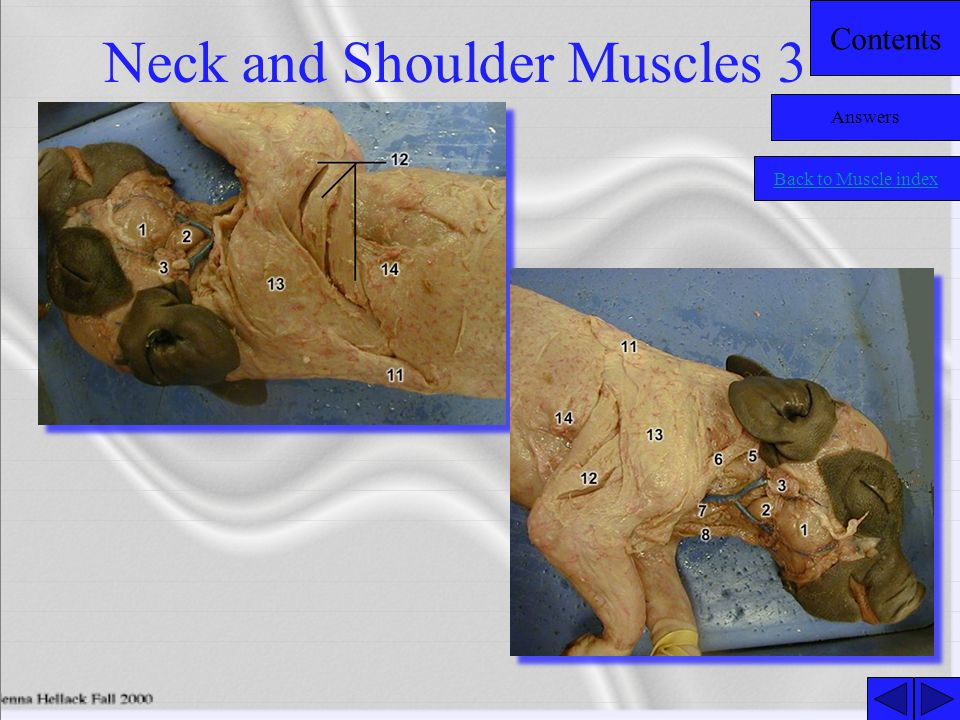 Neck and Shoulder Muscles 3