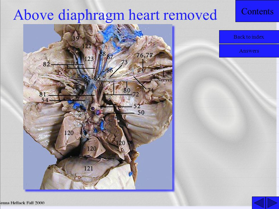 Above diaphragm heart removed