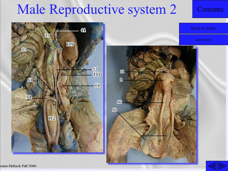 Male Reproductive system 2
