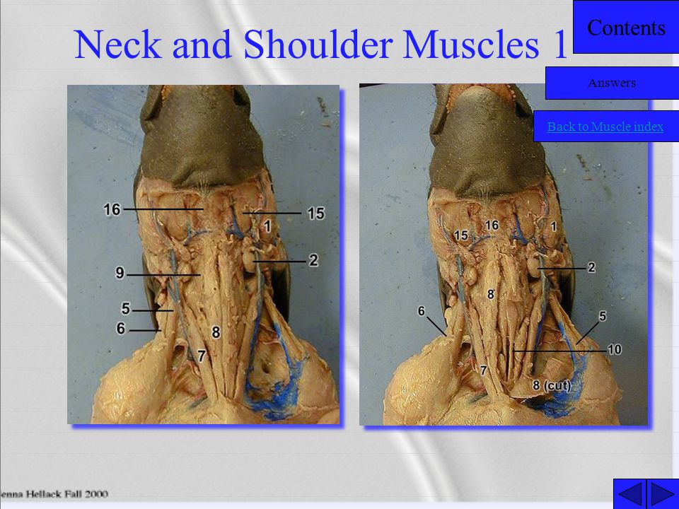 Neck and Shoulder Muscles 1