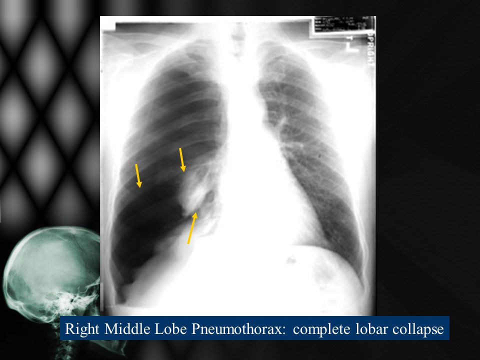 Right Middle Lobe Pneumothorax: complete lobar collapse