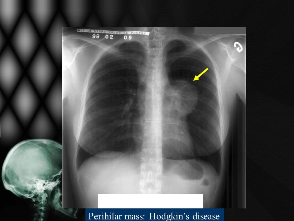 Perihilar mass: Hodgkin's disease