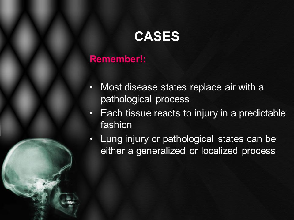 CASES Remember!: Most disease states replace air with a pathological process. Each tissue reacts to injury in a predictable fashion.