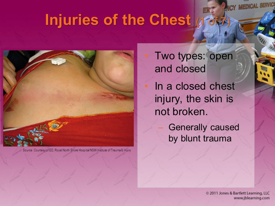 Injuries of the Chest (1 of 7)