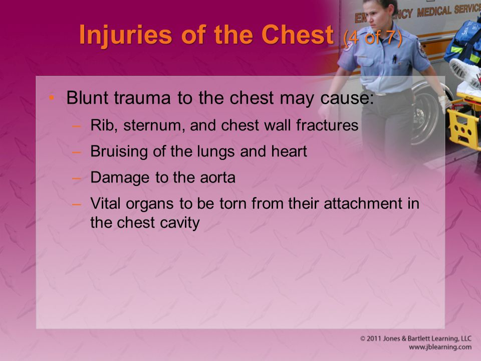 Injuries of the Chest (4 of 7)
