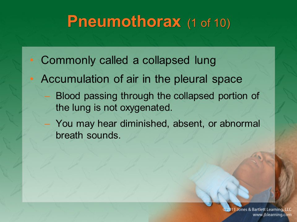 Pneumothorax (1 of 10) Commonly called a collapsed lung