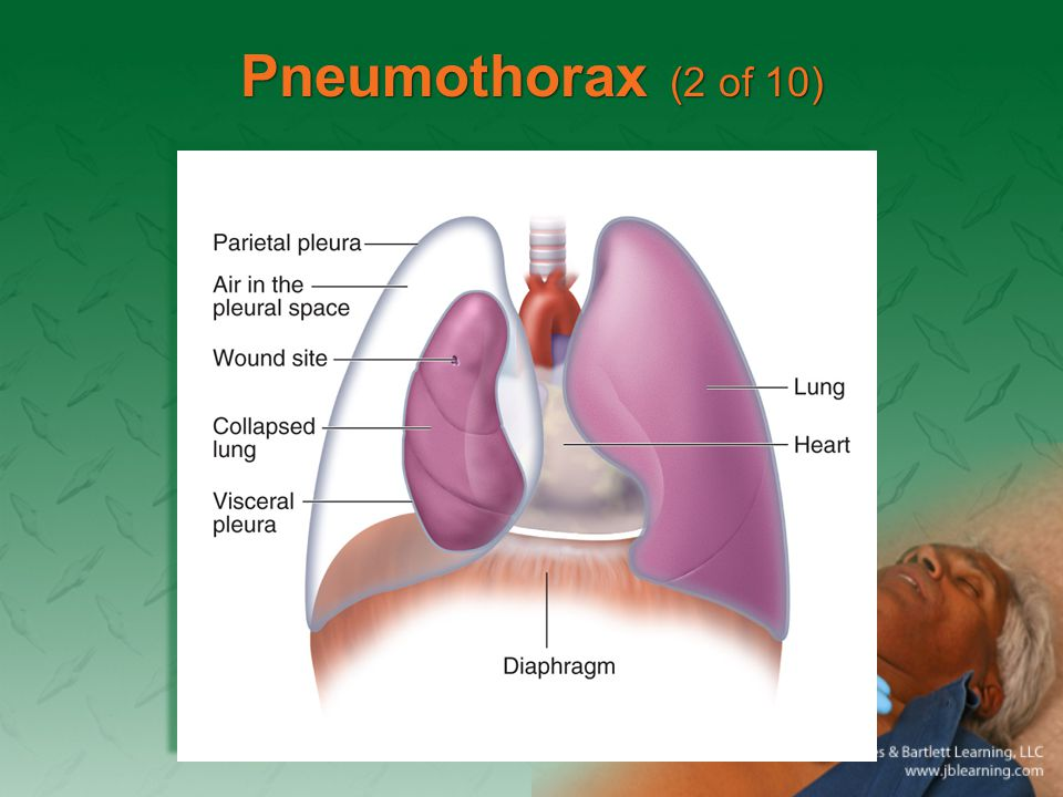 Pneumothorax (2 of 10)
