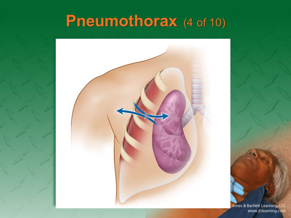 Pneumothorax (4 of 10)