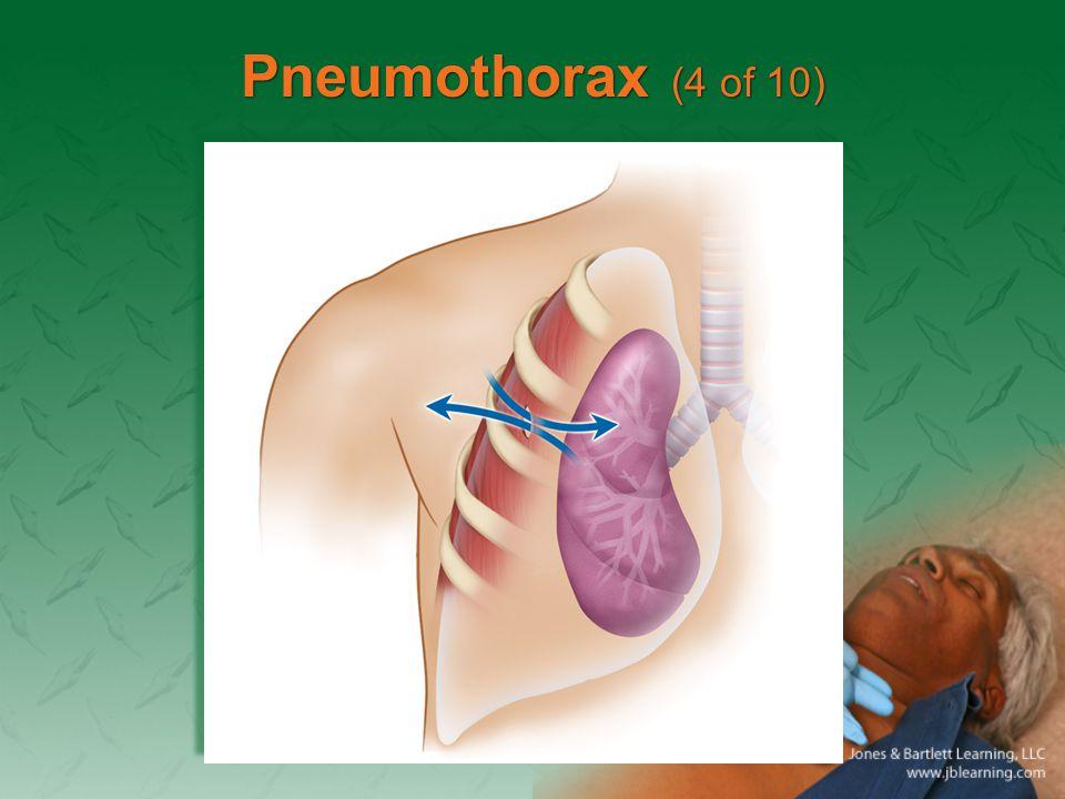 Pneumothorax (4 of 10)