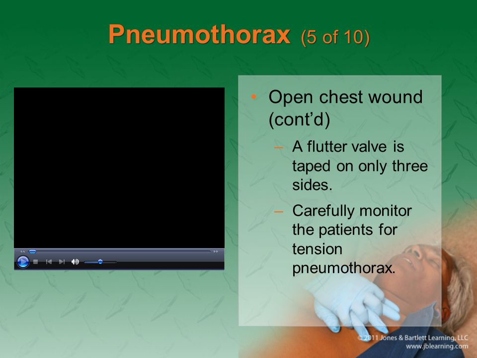 Pneumothorax (5 of 10) Open chest wound (cont'd)