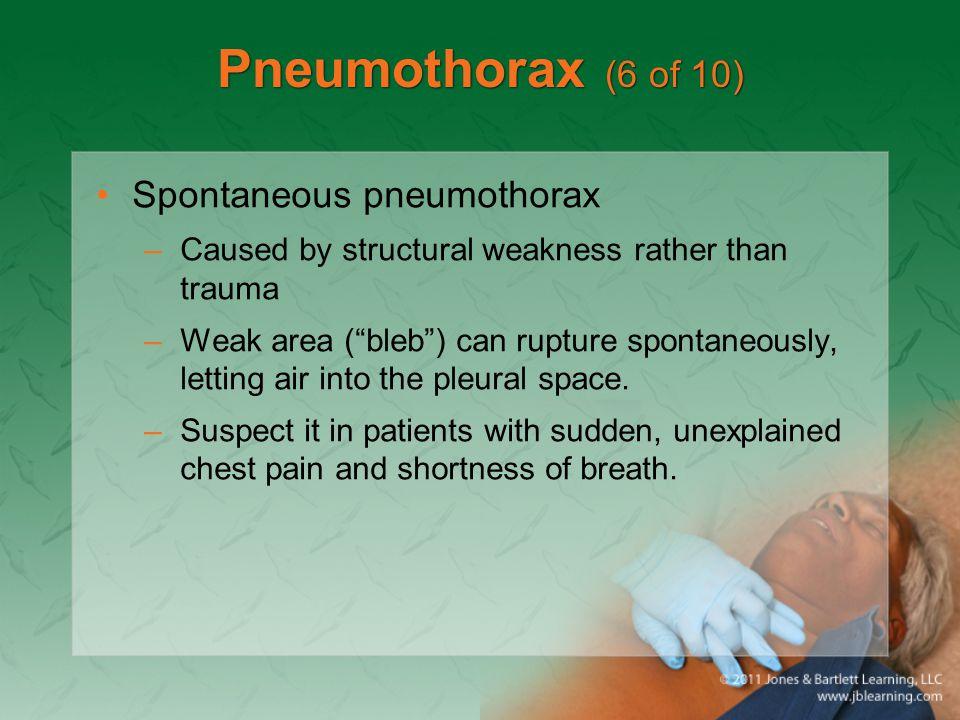 Pneumothorax (6 of 10) Spontaneous pneumothorax
