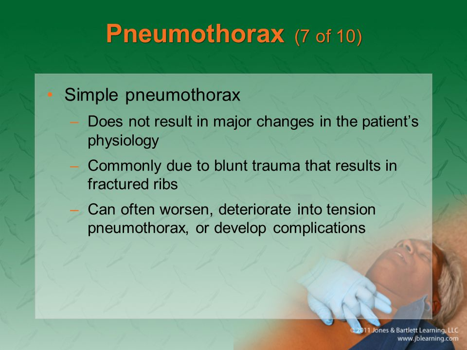 Pneumothorax (7 of 10) Simple pneumothorax