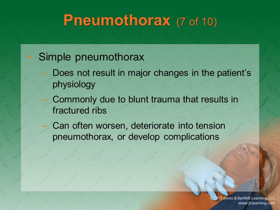 Pneumothorax (7 of 10) Simple pneumothorax