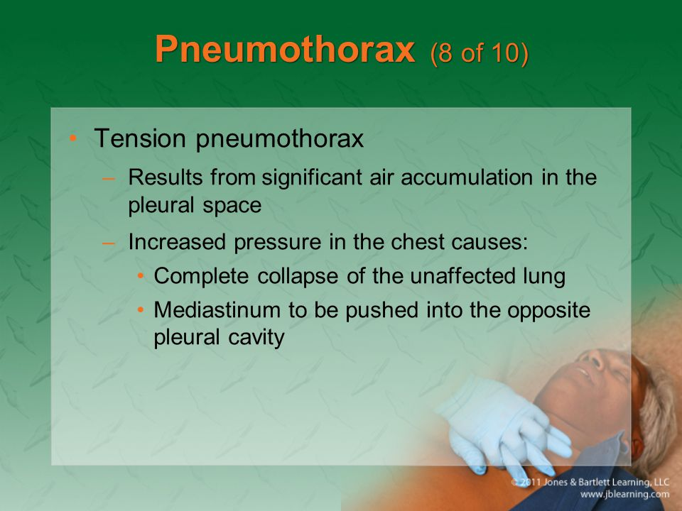 Pneumothorax (8 of 10) Tension pneumothorax