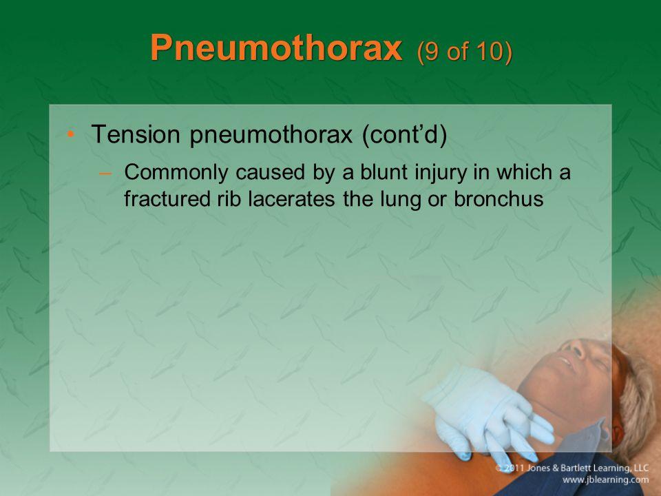 Pneumothorax (9 of 10) Tension pneumothorax (cont'd)