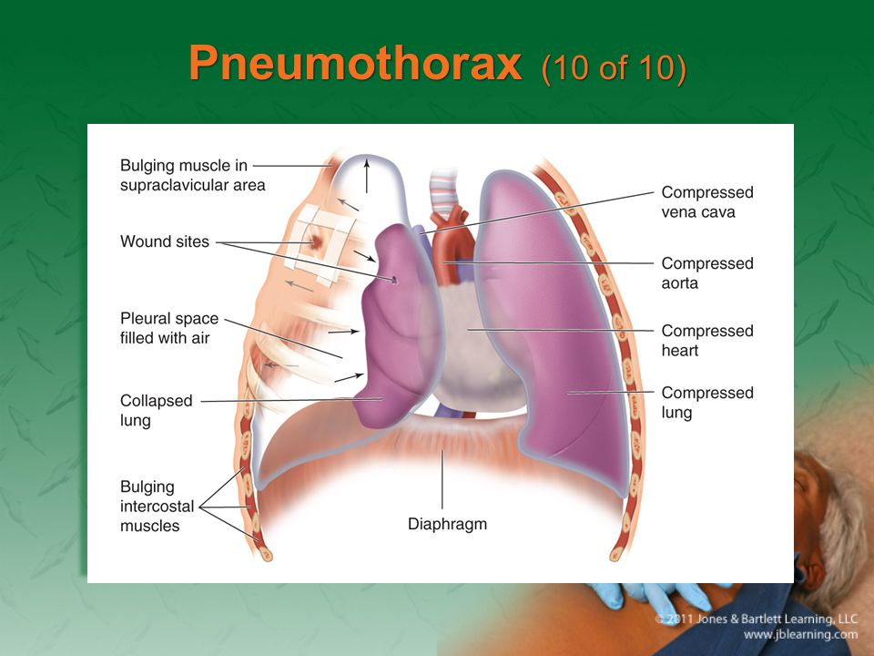 Pneumothorax (10 of 10)