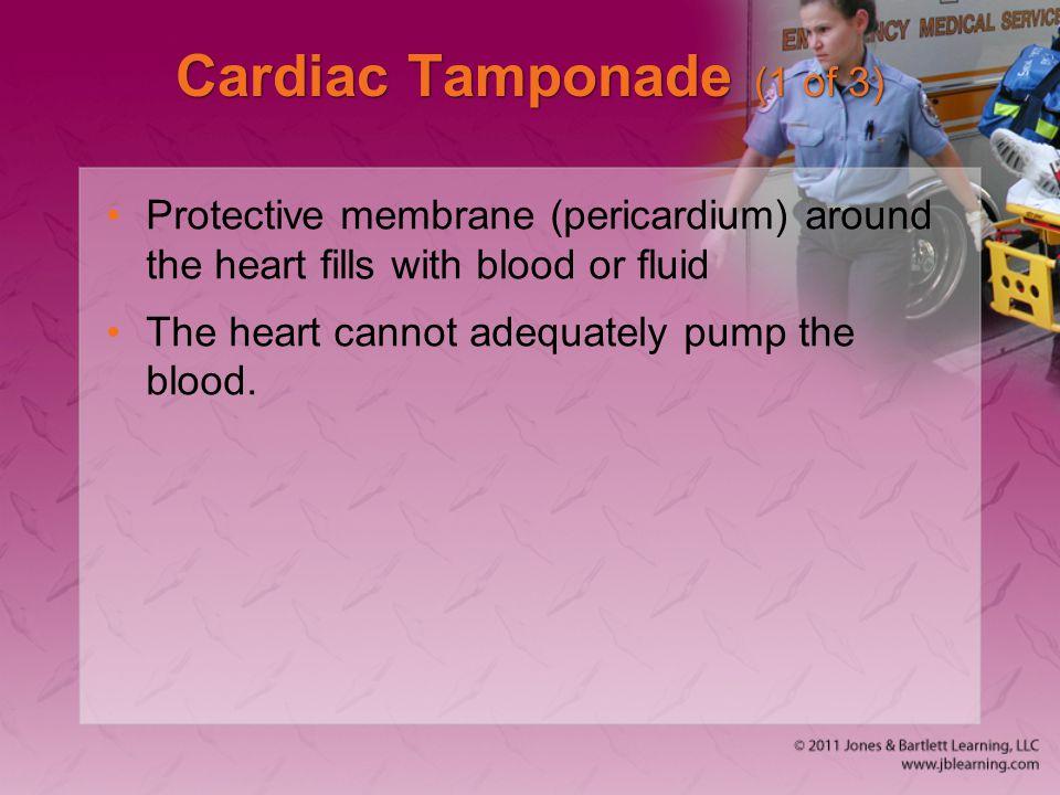 Cardiac Tamponade (1 of 3)