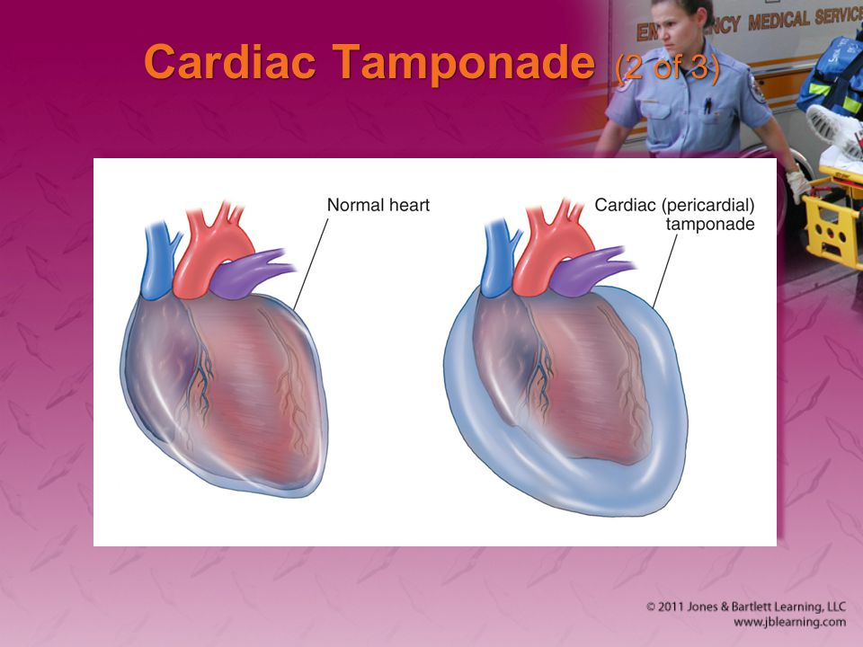 Cardiac Tamponade (2 of 3)