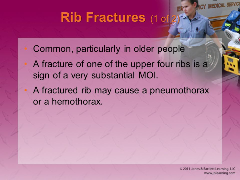 Rib Fractures (1 of 2) Common, particularly in older people