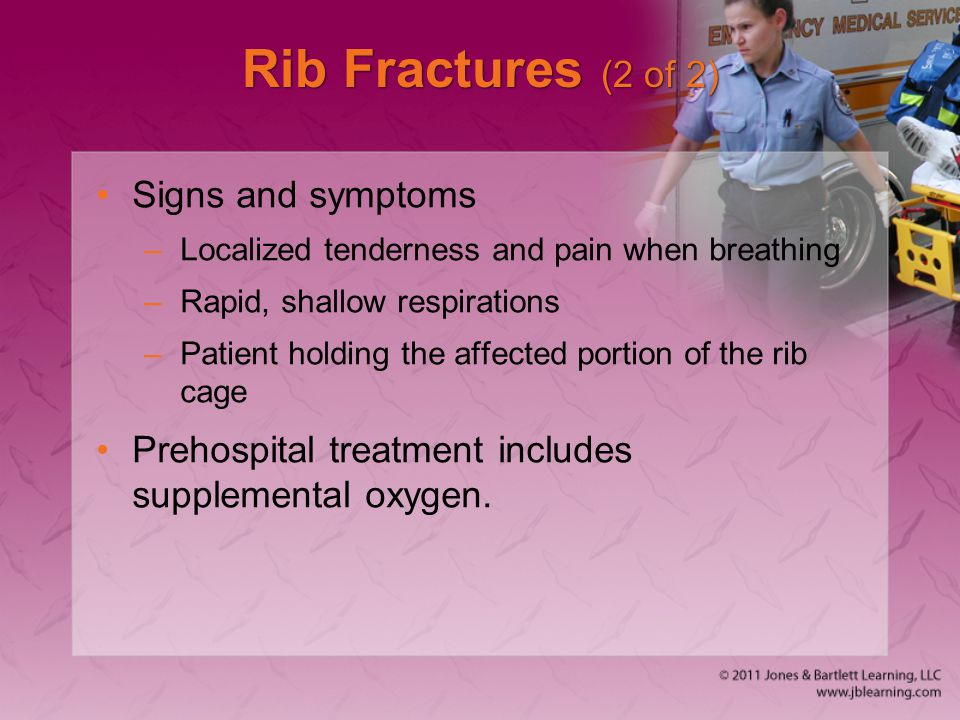 Rib Fractures (2 of 2) Signs and symptoms