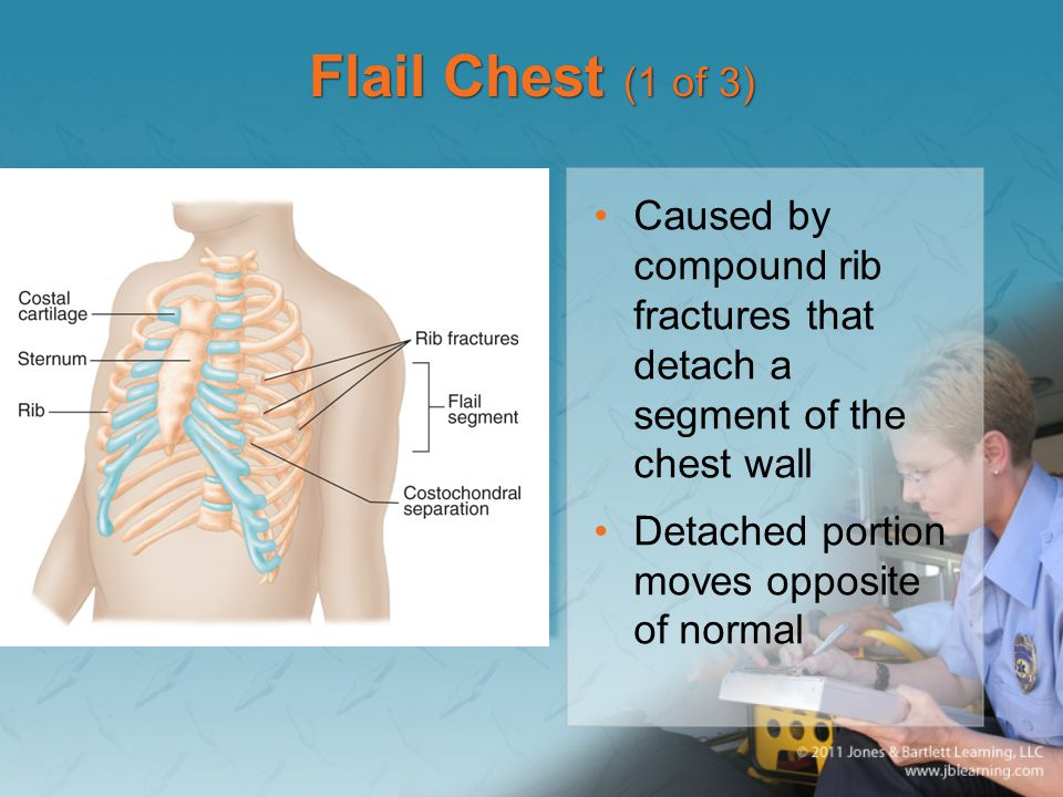 Flail Chest (1 of 3) Caused by compound rib fractures that detach a segment of the chest wall.